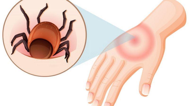 Vilwadi Gulika Treats Insect/Rodent Bites and Gastroenteritis